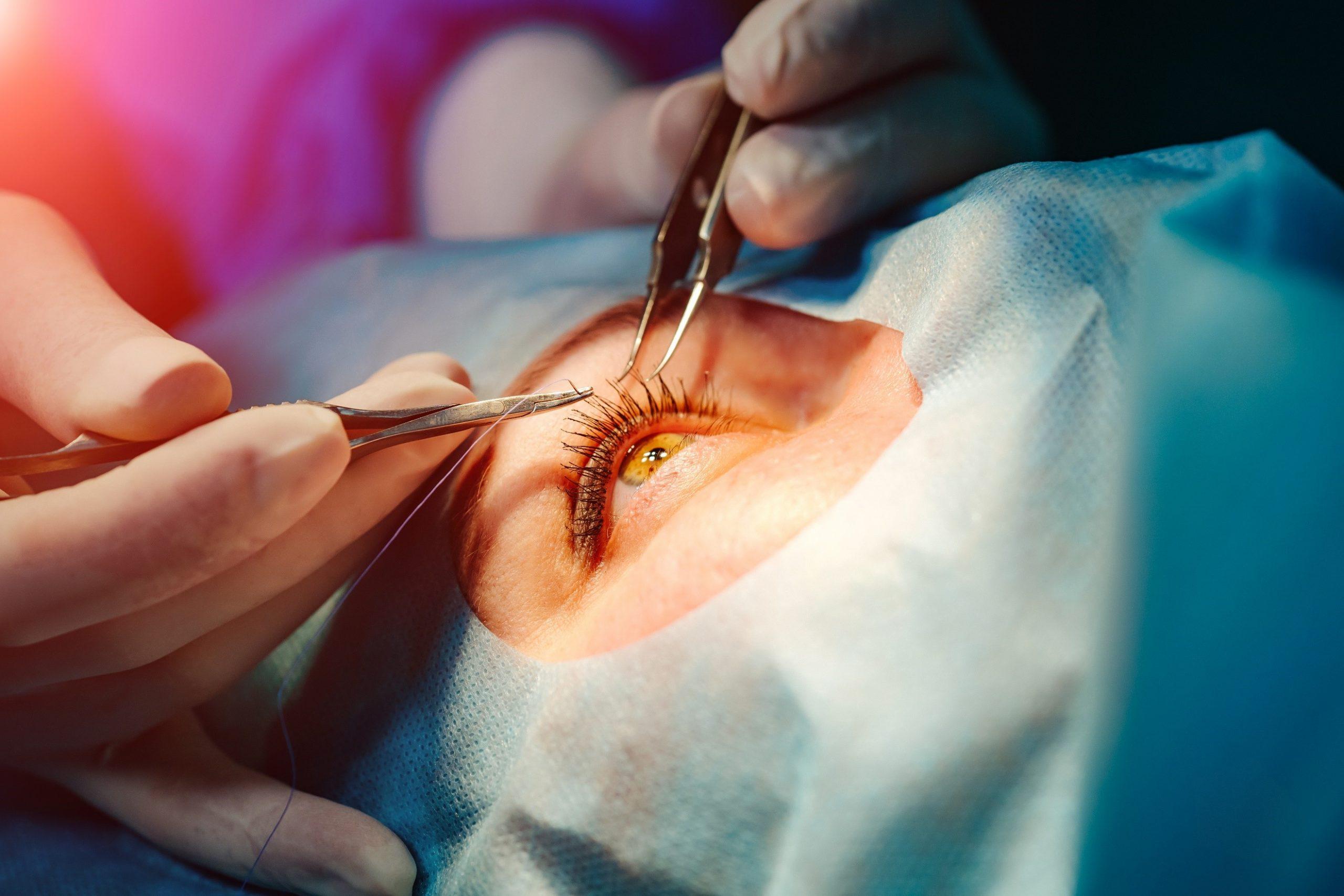 Operados de los ojos